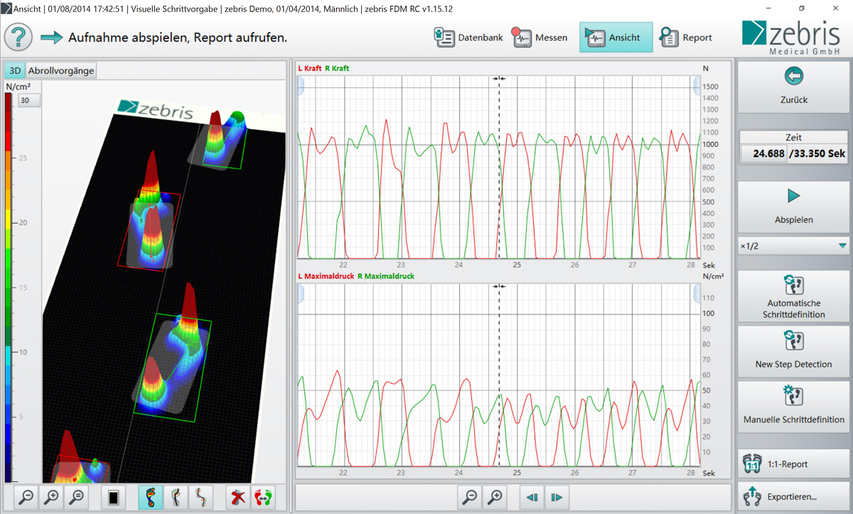 gait analysis A gait analysis is a free tool we use at jackrabbit to quickly and accurately  we' ll find you a pair of running shoes that suits your unique foot shape best and.